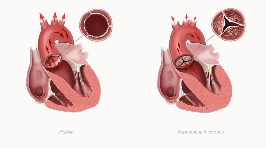 Основные разновидности порока сердца