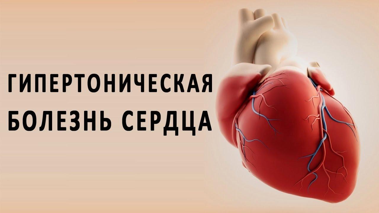 Кардиология: гипертоническая болезнь, ишемическая болезнь сердца